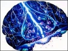 epilepsia 2