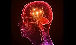 epilepsia 4